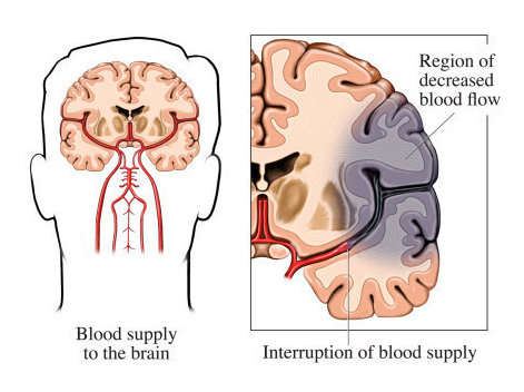 Diagram indicating how brain tissue dies downstream from a blood clot