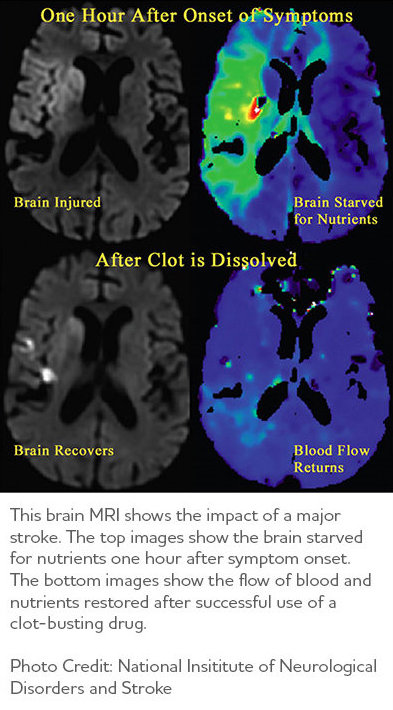 Brain MRI showing clot-busting drugs